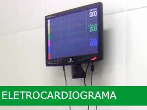 servico-eletrocardiograma