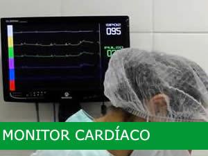 servico-monitor-cardiaco